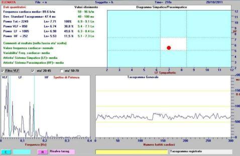 La gestione dell'attivazione con il biofeedback